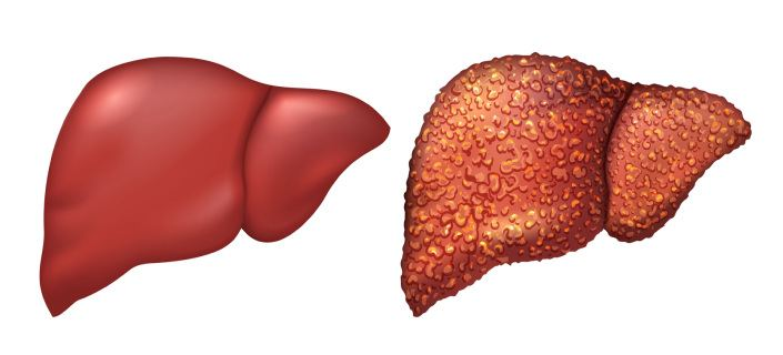 Fatty Liver And Energy Drinks