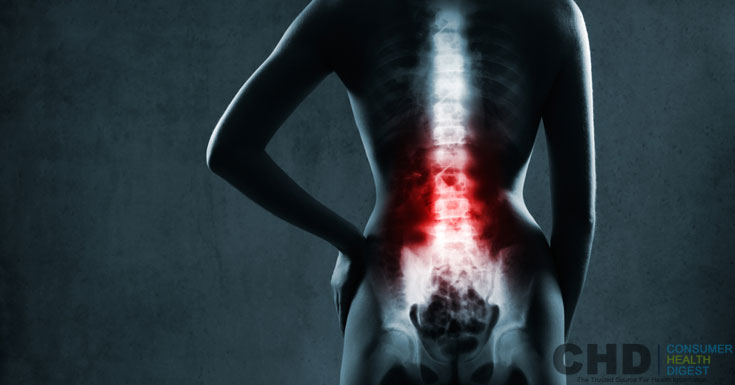 lumbar-feeling-arthritic