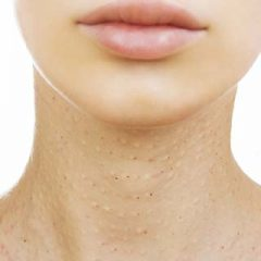 Skin Discoloration Neck