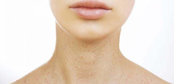 Neck Care Center: Beauty Tips, News, Articles, Expert Advice
