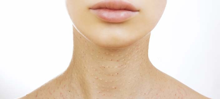 skin discoloration on neck and chest area - what you must know, Skeleton