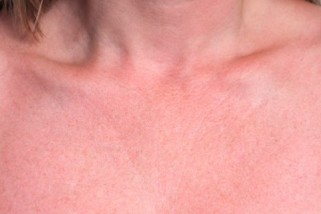 Sun Damage On Neck