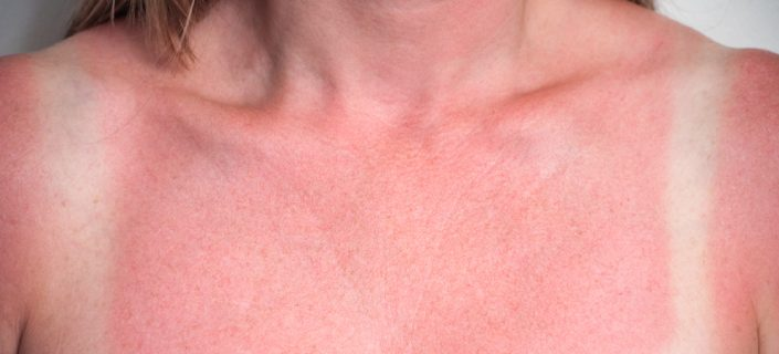 Sun Damage On Neck