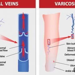Varicose Veins and Water Retention