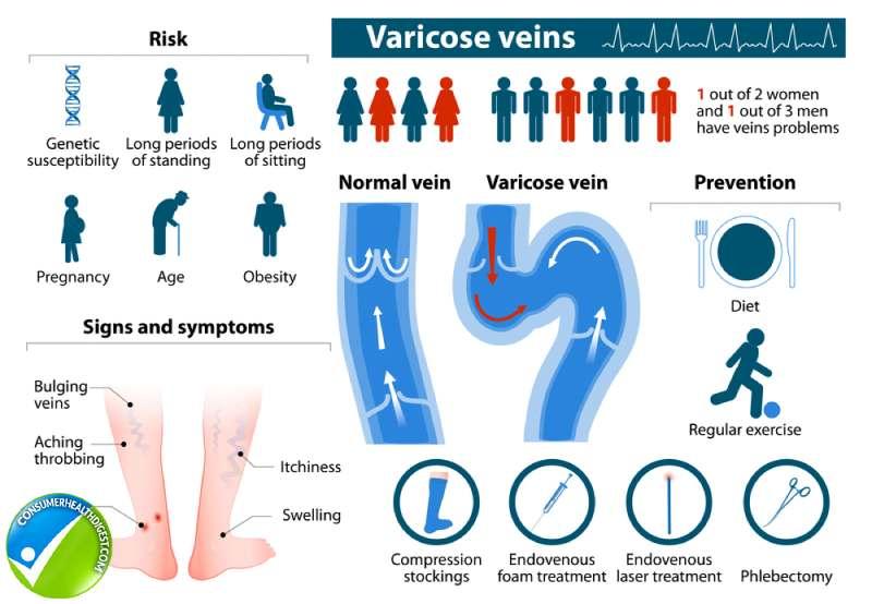 Varicose Veins Causes