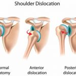 Is Complete Shoulder Joint Replacement The Right Choice?