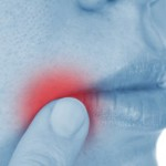 Angular Cheilitis: Causes, Symptoms, Prevention and Treatments