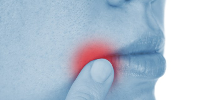 how to get rid of angular cheilitis overnight