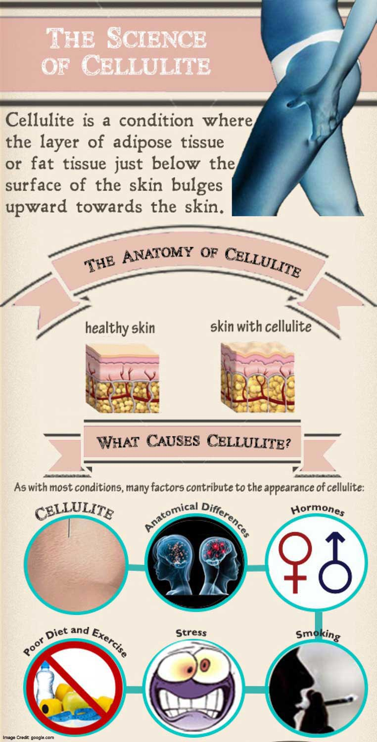 cellulite science