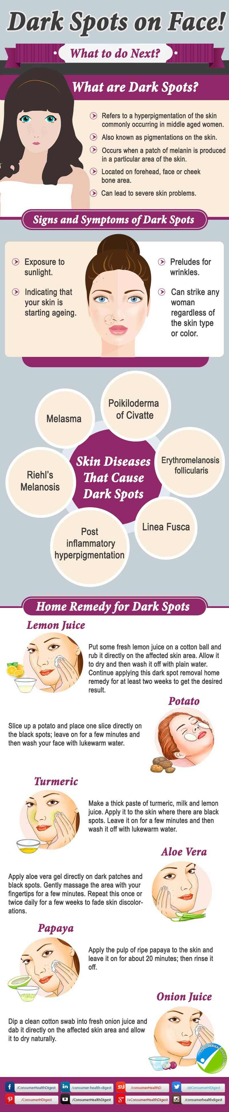 Dark Spot Face Info