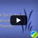6 Tips To Remove Stretch Marks Naturally