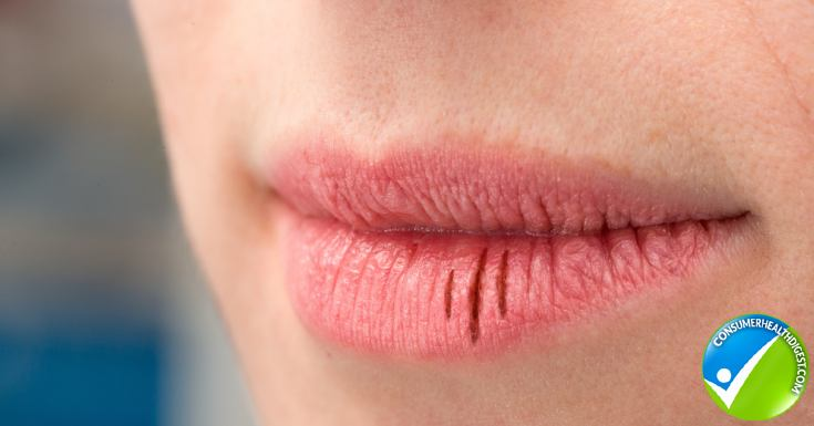 The Hidden Causes of Peeling Lips