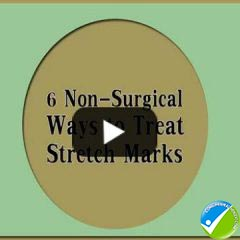 6 Non Surgical Ways to Treat Stretch Marks