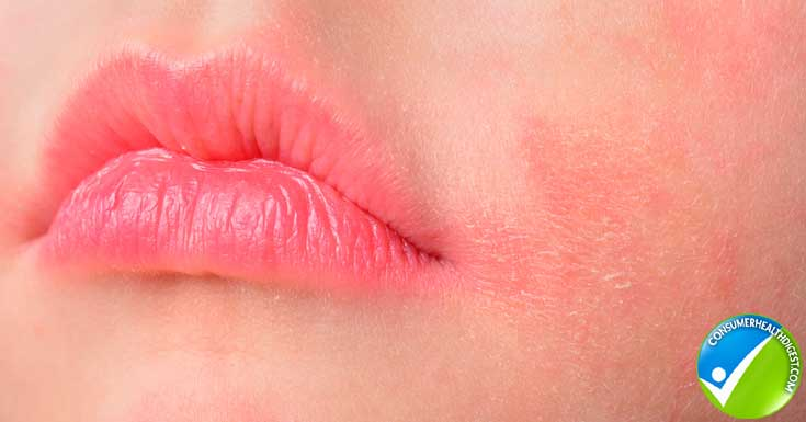 Causes of Itchy Lips