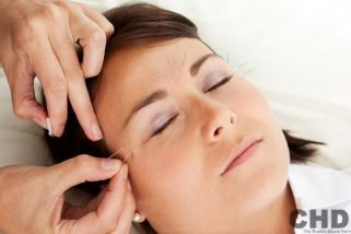 Can Acupuncture Help to Treat Dark Circles Under Eyes?