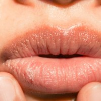 Can Lemon Juice Help to Cure Cracked Lips?