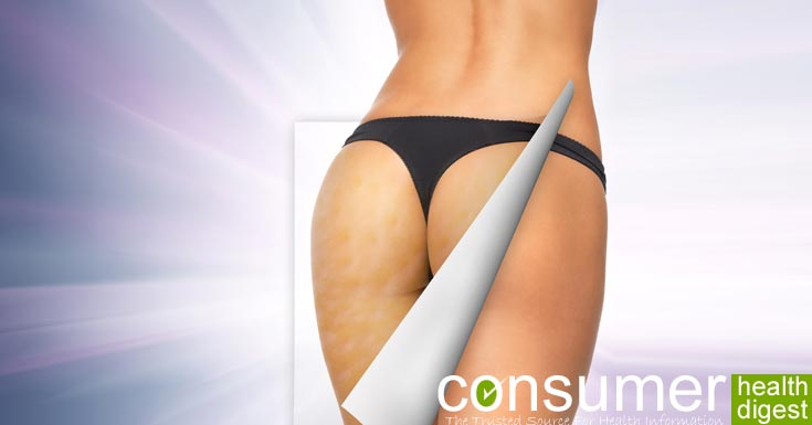 Fight Cellulite: Find Here The Secret Weapons!