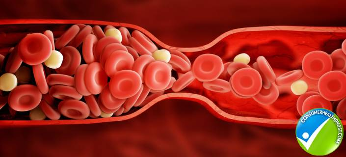 Hormonal Changes and Vaginal Blood Clots