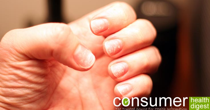 Menopause and Brittle Nails