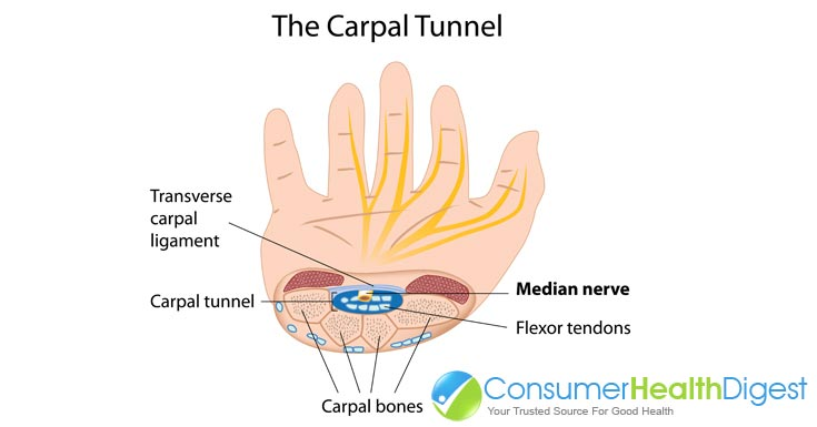 Menopause and Carpal Tunnel Syndrome