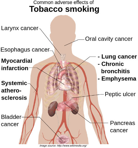 Tobacco Smoking Adverse