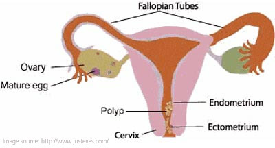 What are Vaginal Polyps?