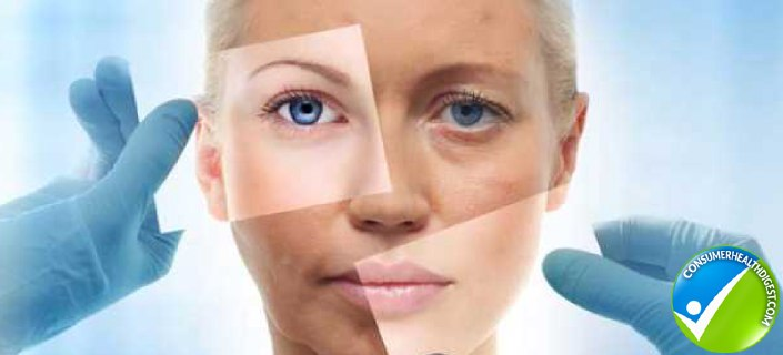 Skin Aging Proces