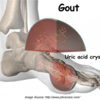 Gout and gall bladder disease