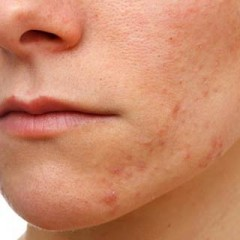 Acne Scars: Know The Reasons and Treatments for Acne Scars
