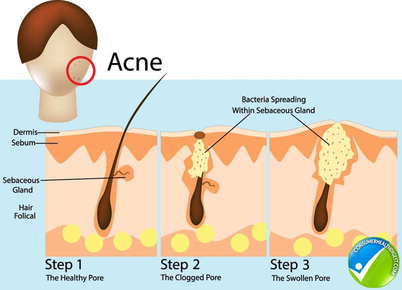 Get Acne Scars