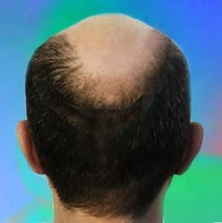 Types of Hair Loss