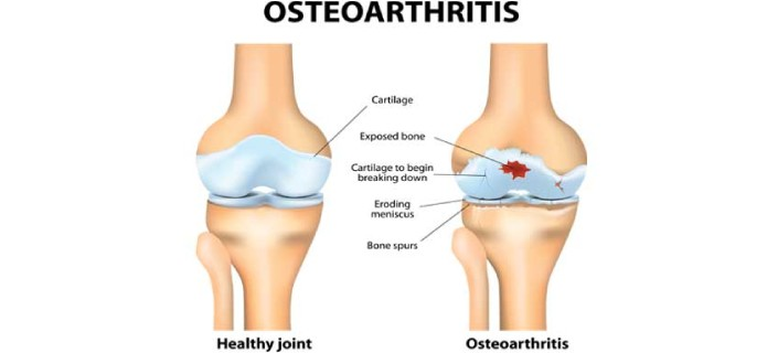 Inflammation and Osteoarthritis