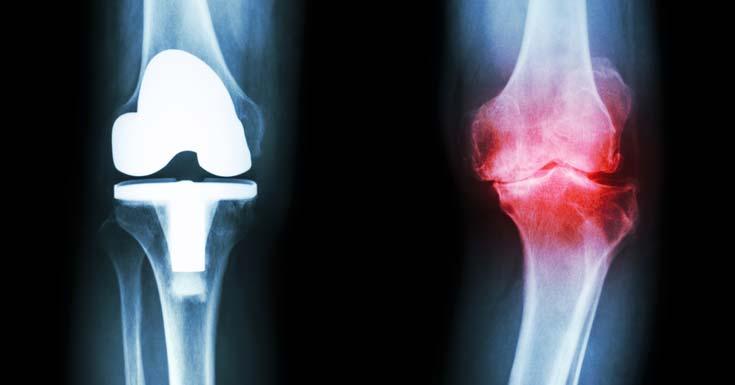 Osteoarthritis and Hypothyroidism