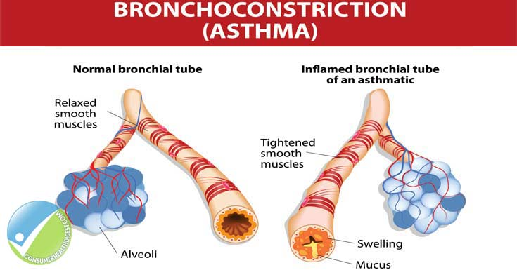 Asthma: Causes, Symptoms, Diagnosis, Treatment & More