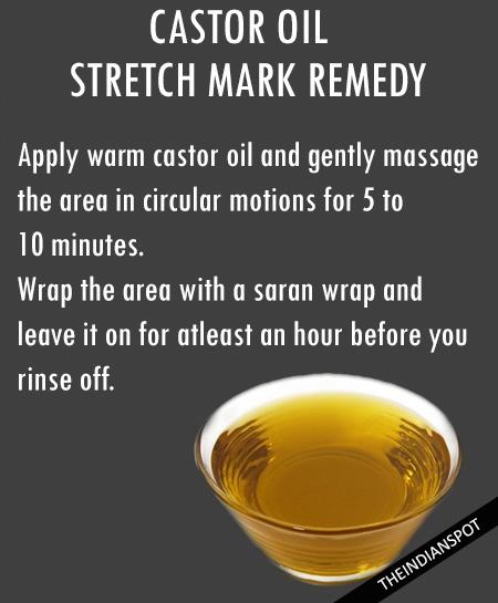 Castor Oil Stretch Marks