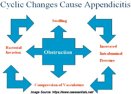 appendicitis: causes, symptoms, diagnosis and treatment, Cephalic Vein