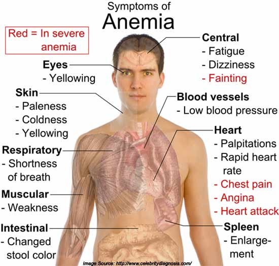 Symptoms of Iron Deficiency Anemia
