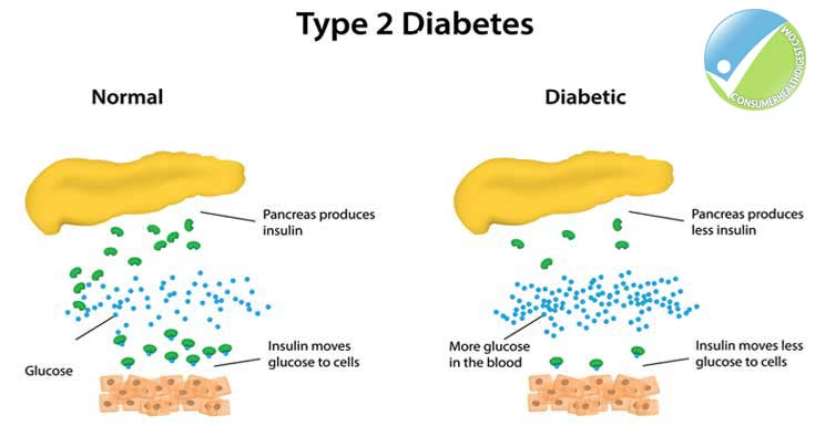 diabetes: types, symptoms, causes, diagnosis, treatments & more, Skeleton