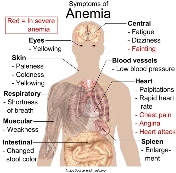 Symptoms of Aplastic Anemia and MDS