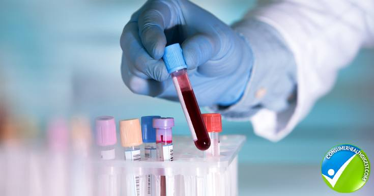 Blood Test Sample