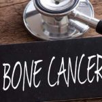 A Complete Overview Of Bone Cancer