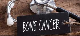 Bone Cancer Overview
