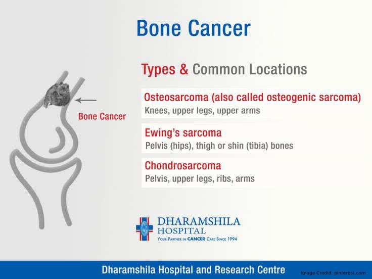 Bone Cancer Types Info