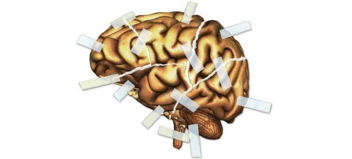 Brain Injury And Memory Loss