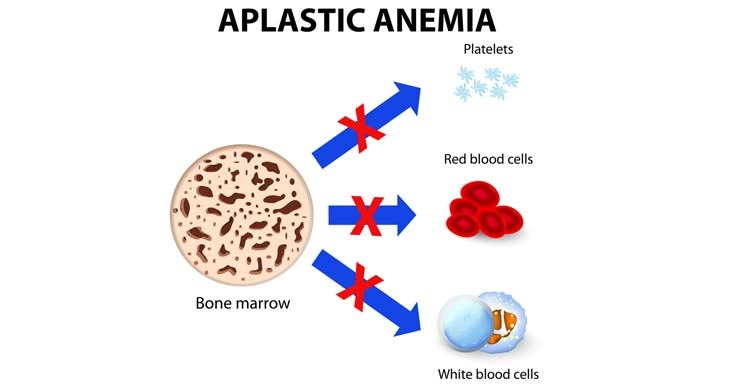 Causes of Aplastic Anemia and MDS