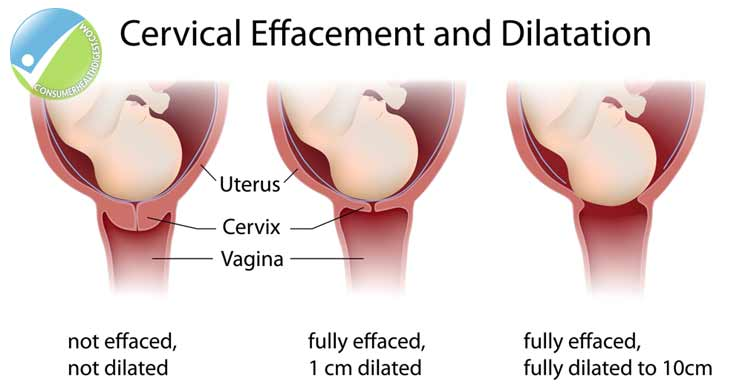 Cervical Changes During Pregnancy