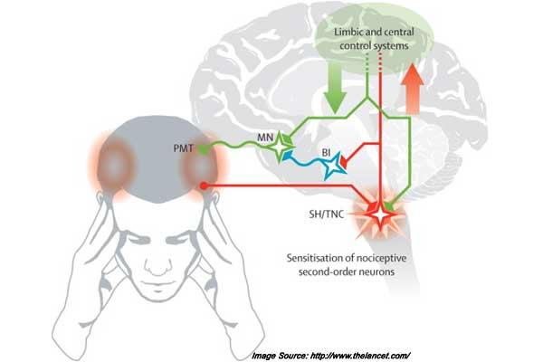 diagram of migraine headaches imagespace    migraine       headache       diagram    gmispace com  imagespace    migraine       headache       diagram    gmispace com