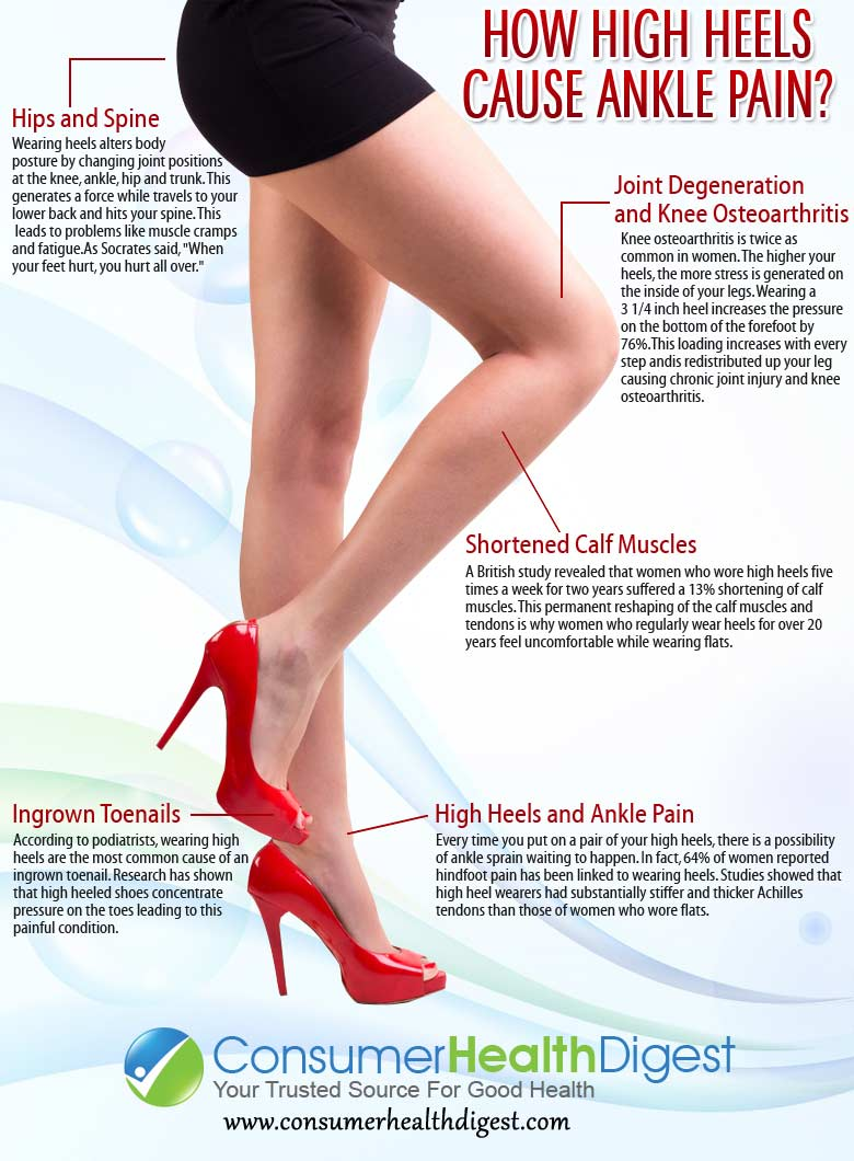 High Heels Cause Ankle Pain?