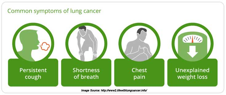 lung cancer: types, symptoms, causes, diagnosis and treatment, Human Body