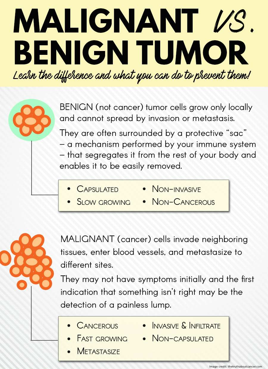 Malignant And Benign Tumors difference Info